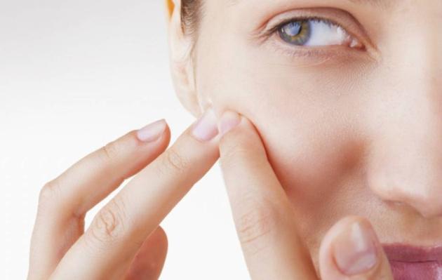 ¿Cuanto más acné tengas, más años vivirás?