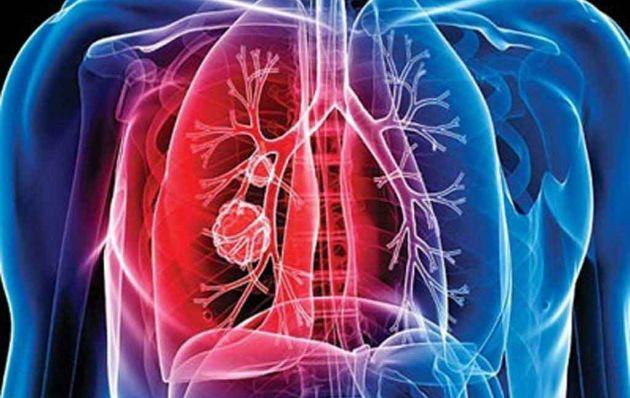 Día de la Tuberculosis: 4 Consejos alimenticios para prevenir contagio de esta enfermedad