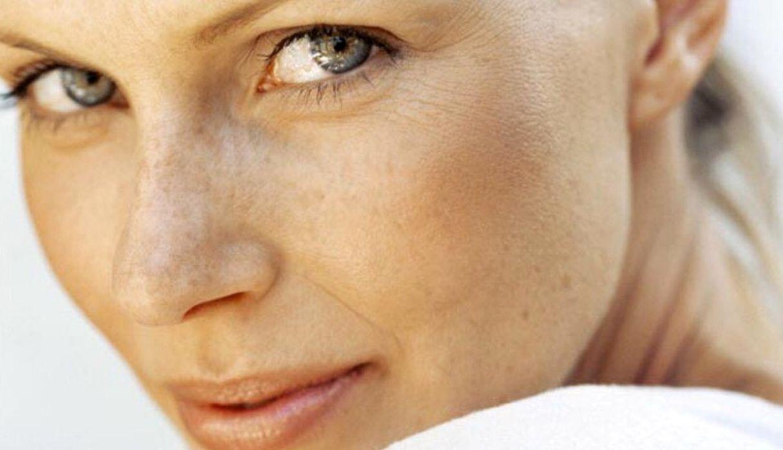 ¿Manchas faciales? Cinco tratamientos que te ayudarán a prevenirlas o atenuarlas