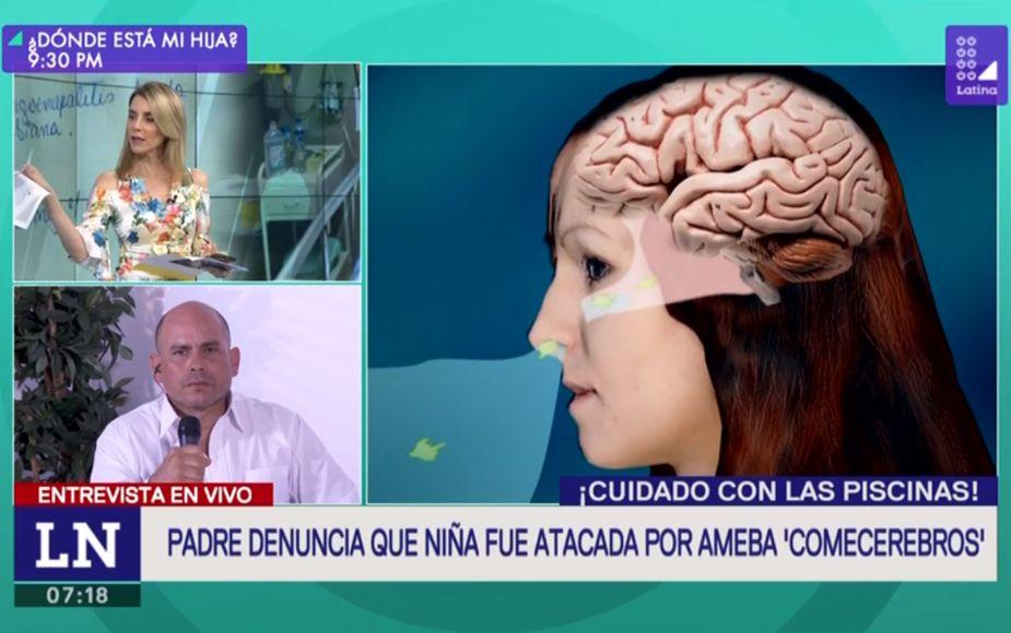Padre denuncia que niña fue afectada por la ameba 'comecerebros' en piscina de Lima