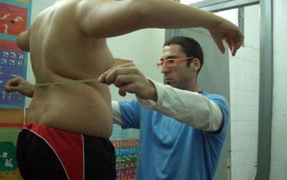 Esto te puede pasar si bajas de peso de manera violenta, advierte el Minsa