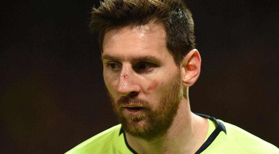 Barcelona: Lionel Messi en observación tras recibir duro golpe en la nariz