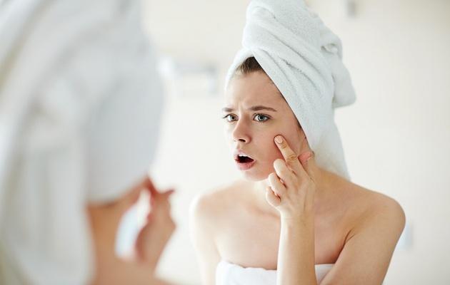 Éstos son los ingredientes que debes evitar si tienes acné