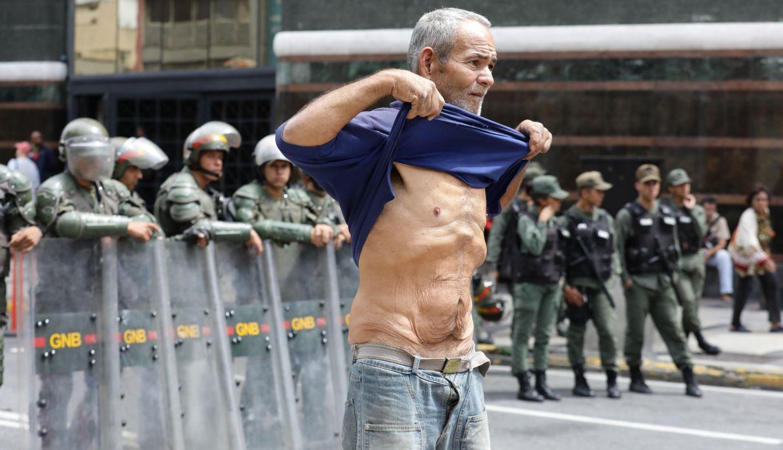 Un ex trabajador petrolero de Exxon Mobil que lleva 21 días en huelga de hambre, según su testimonio, muestra su abdomen durante un plantón de ex empleados. (Foto: EFE)