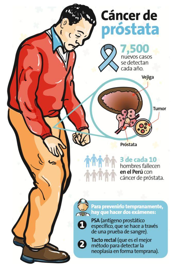 que es el examen psa de la prostata