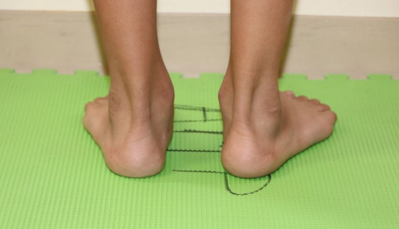 Minsa advirtió que escolares con mala postura podrían tener pie plano